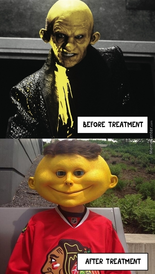 19 Funniest Yellow Meme That You Never Seen Before   MemesBoy