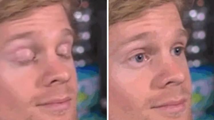 Close Eye Open Eye Blinking Guy Meme